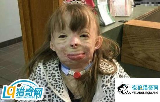 亲妈纵火烧女儿 被烧得严重毁容面目全非看了令人揪心
